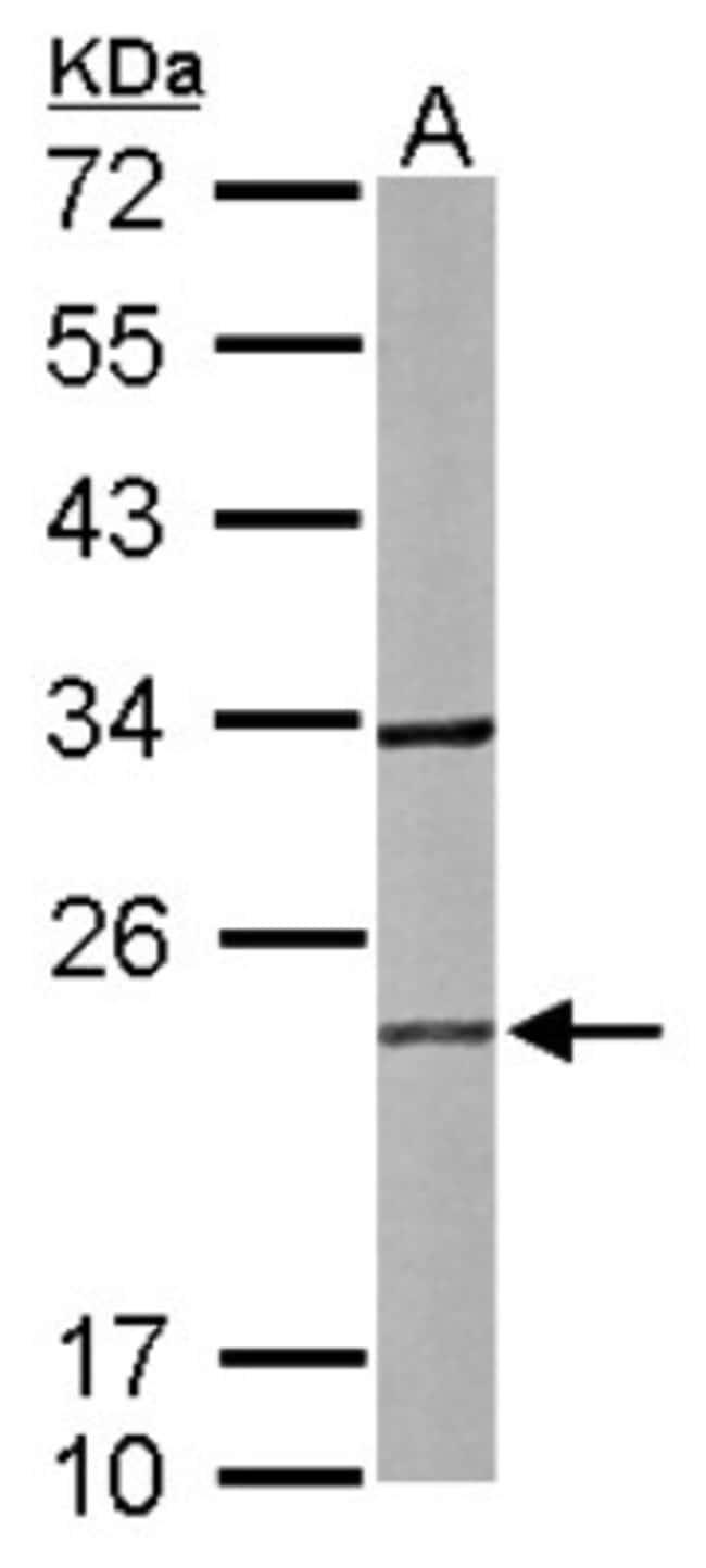 anti-RAB2B, Polyclonal, Novus Biologicals 0.1mL; Unlabeled:Antibodies