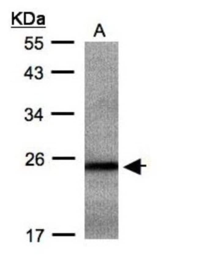 anti-RAB2B, Polyclonal, Novus Biologicals 0.1mL; Unlabeled:Life Sciences