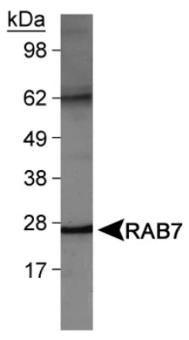 anti-Rab7a, Polyclonal, Novus Biologicals:Antibodies:Primary Antibodies