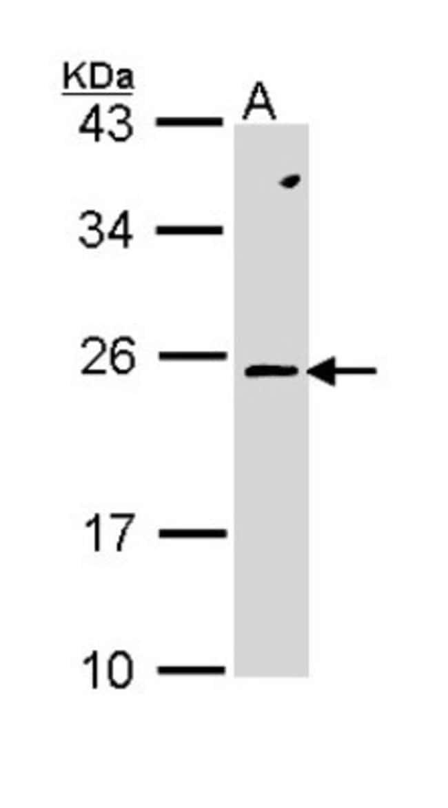 anti-RAC2, Polyclonal, Novus Biologicals 0.1mg; Unlabeled:Life Sciences