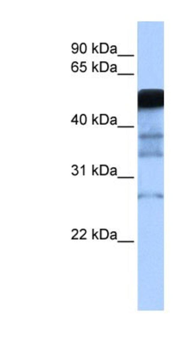 RAD18 Rabbit anti-Human, Polyclonal, Novus Biologicals 100µL; Unlabeled:Life
