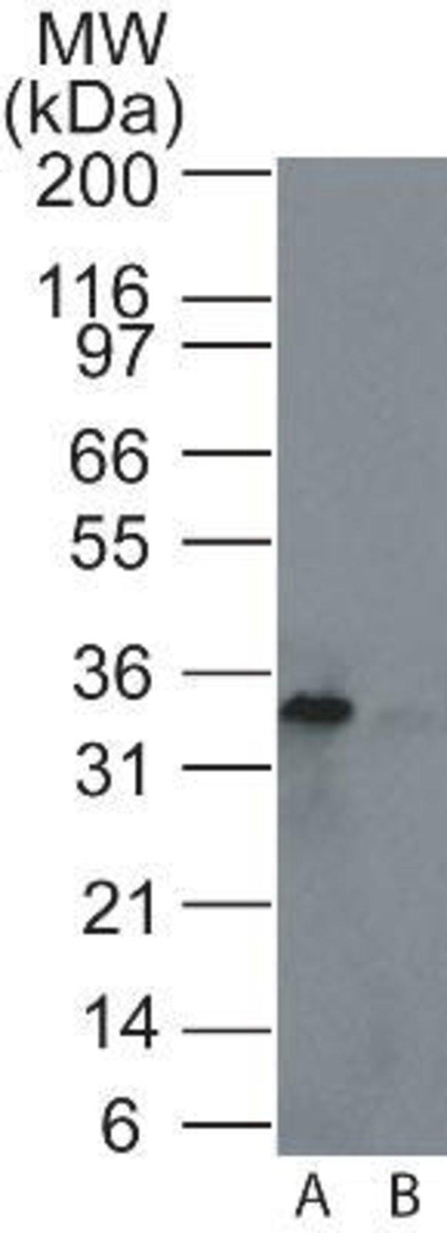 anti-Rad1, Polyclonal, Novus Biologicals:Antibodies:Primary Antibodies