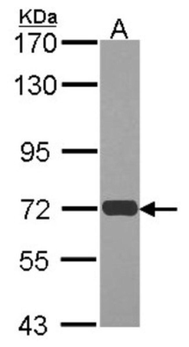anti-RAD54L, Polyclonal, Novus Biologicals 0.1mL; Unlabeled:Antibodies