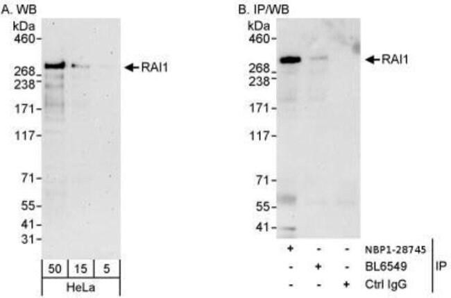 anti-RAI1, Polyclonal, Novus Biologicals 0.1mg; Unlabeled:Life Sciences