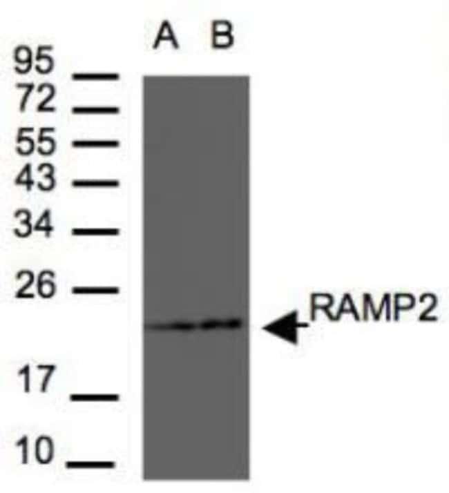 anti-RAMP2, Polyclonal, Novus Biologicals 0.1mg; Unlabeled:Life Sciences