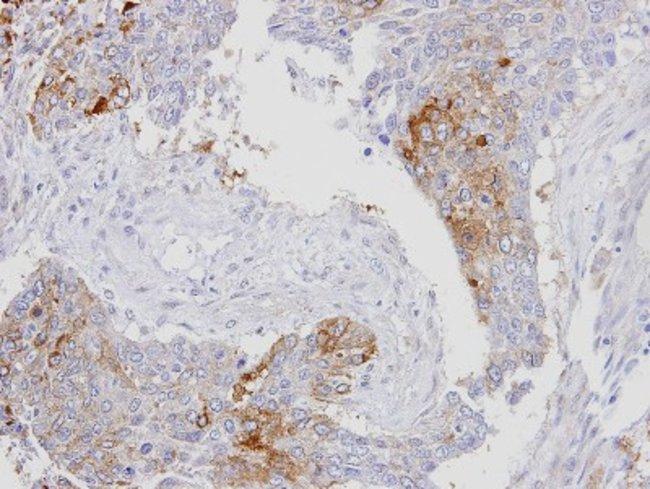 anti-RanBP16, Polyclonal, Novus Biologicals 0.1mL; Unlabeled:Life Sciences
