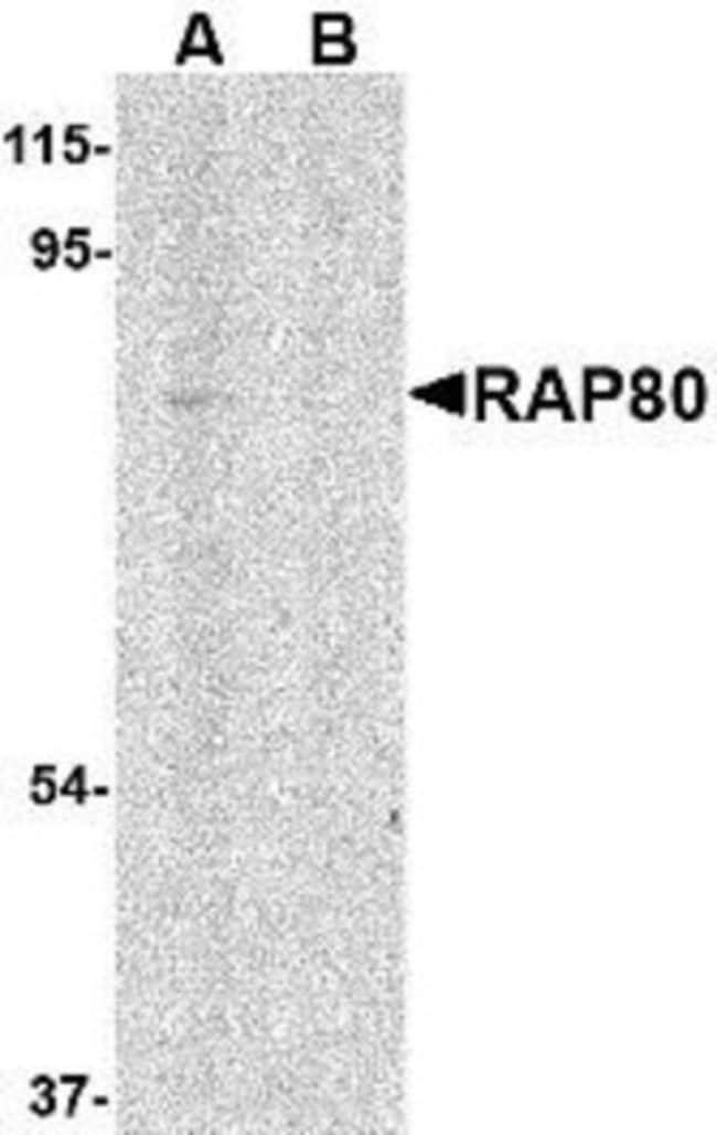 anti-RAP80, Polyclonal, Novus Biologicals 0.1mg; Unlabeled:Life Sciences