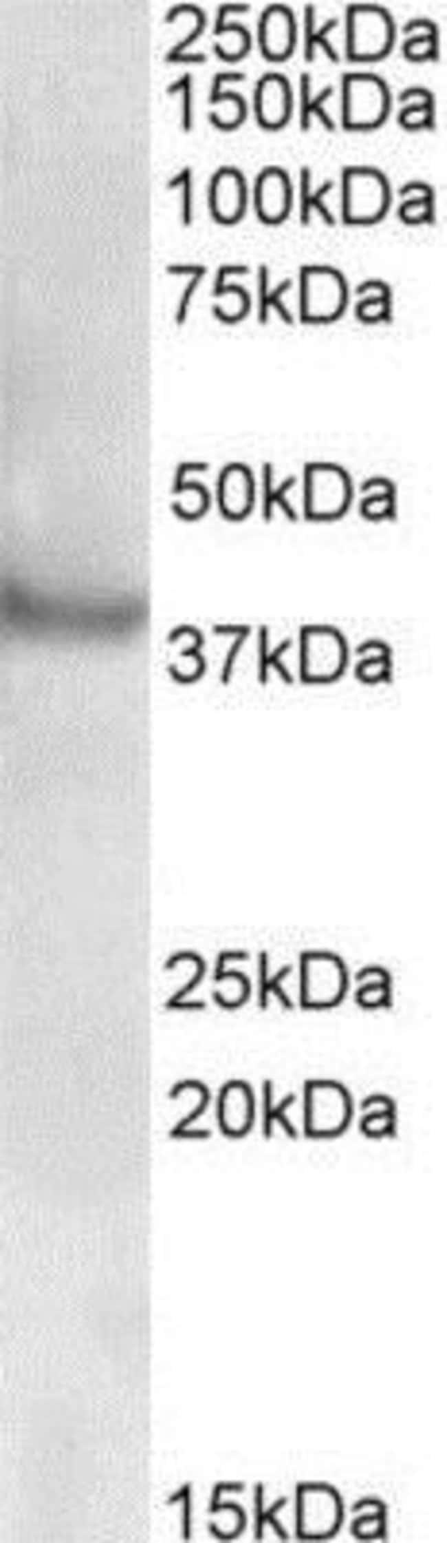 anti-Rapsyn, Polyclonal, Novus Biologicals 0.1mg; Unlabeled:Antibodies