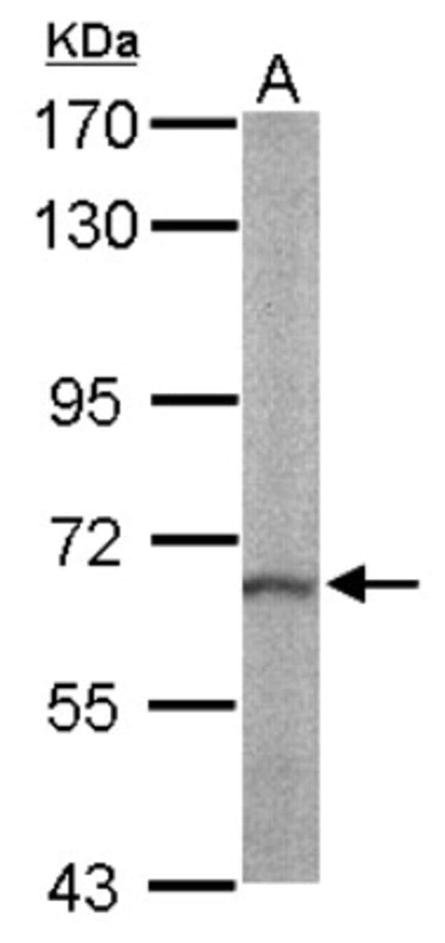 anti-RASGRP2, Polyclonal, Novus Biologicals 0.1mg; Unlabeled:Life Sciences