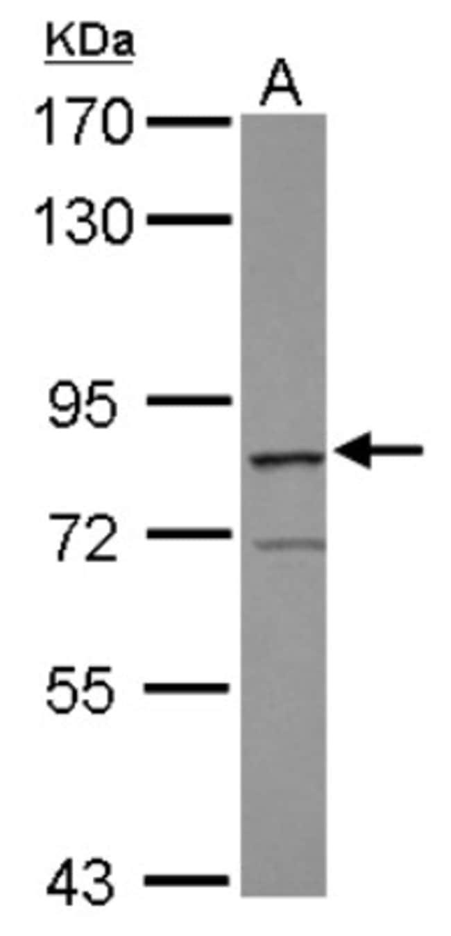 anti-RASGRP3, Polyclonal, Novus Biologicals 0.1mg; Unlabeled:Antibodies