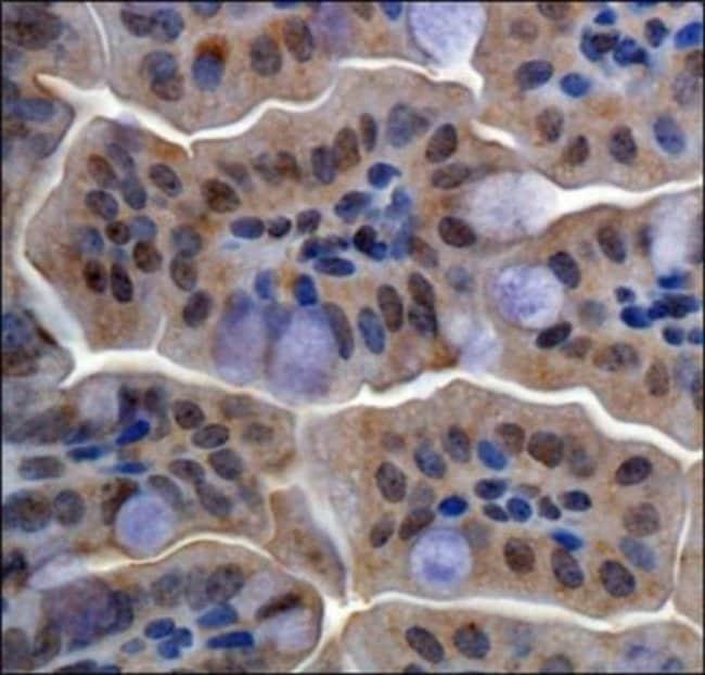 anti-RBBP6, Polyclonal, Novus Biologicals:Antibodies:Primary Antibodies