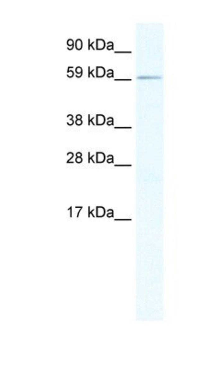 RBM14 Rabbit anti-Human, Mouse, Polyclonal, Novus Biologicals 100µL;