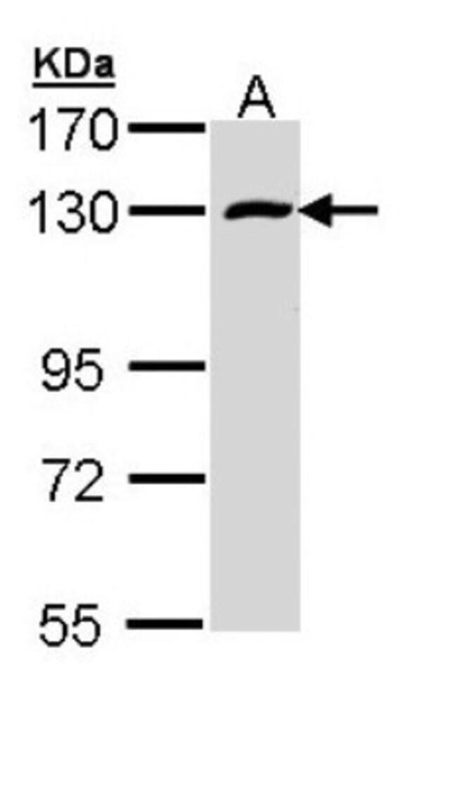 anti-RBM15, Polyclonal, Novus Biologicals 0.1mL; Unlabeled:Life Sciences
