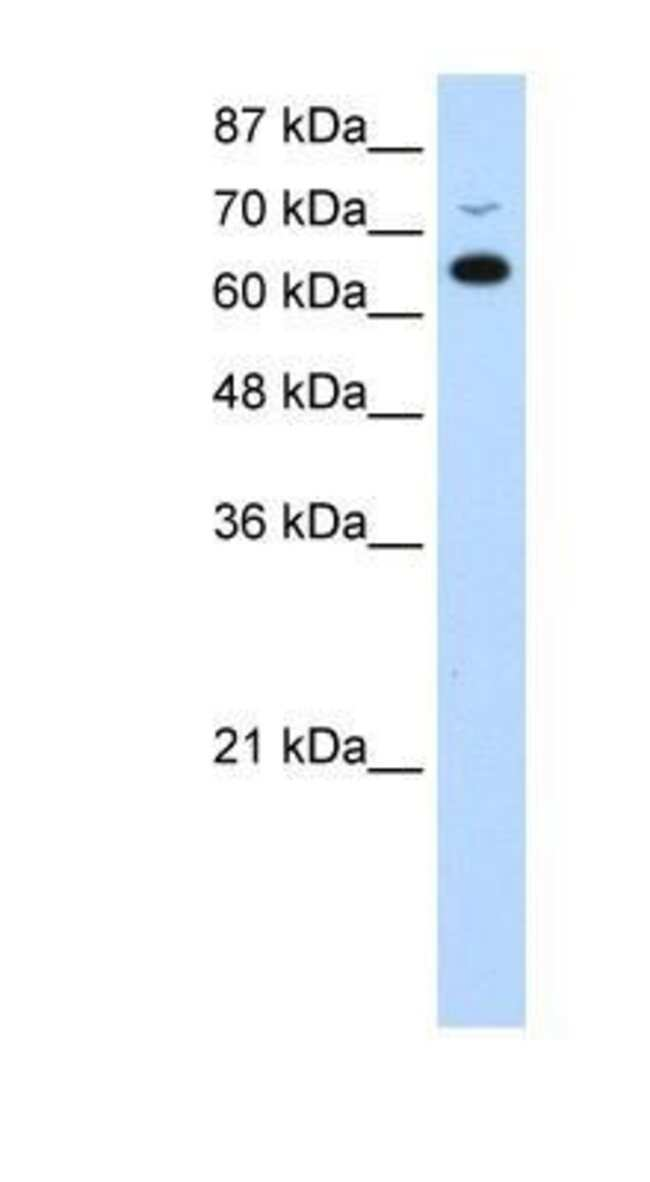 RBM46 Rabbit anti-Human, Polyclonal, Novus Biologicals 20µL; Unlabeled