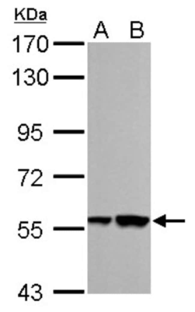 anti-RBMY1A1, Polyclonal, Novus Biologicals 0.1mg; Unlabeled:Antibodies
