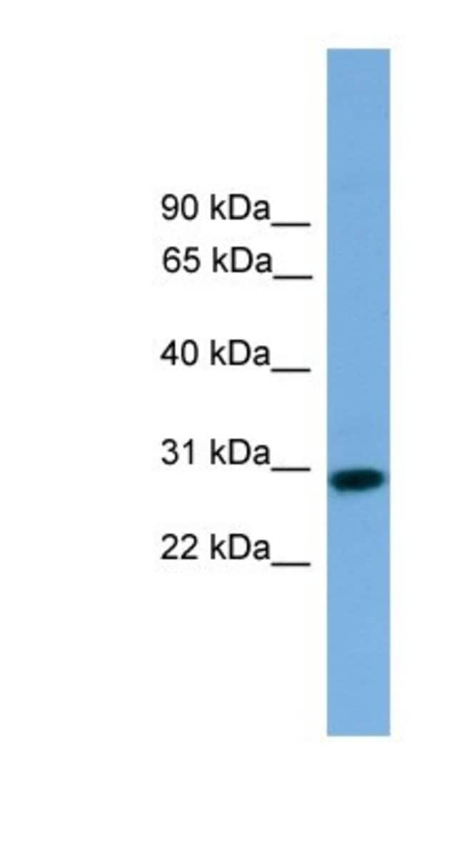 RCAN2 Rabbit anti-Human, Polyclonal, Novus Biologicals 100µL; Unlabeled:Life