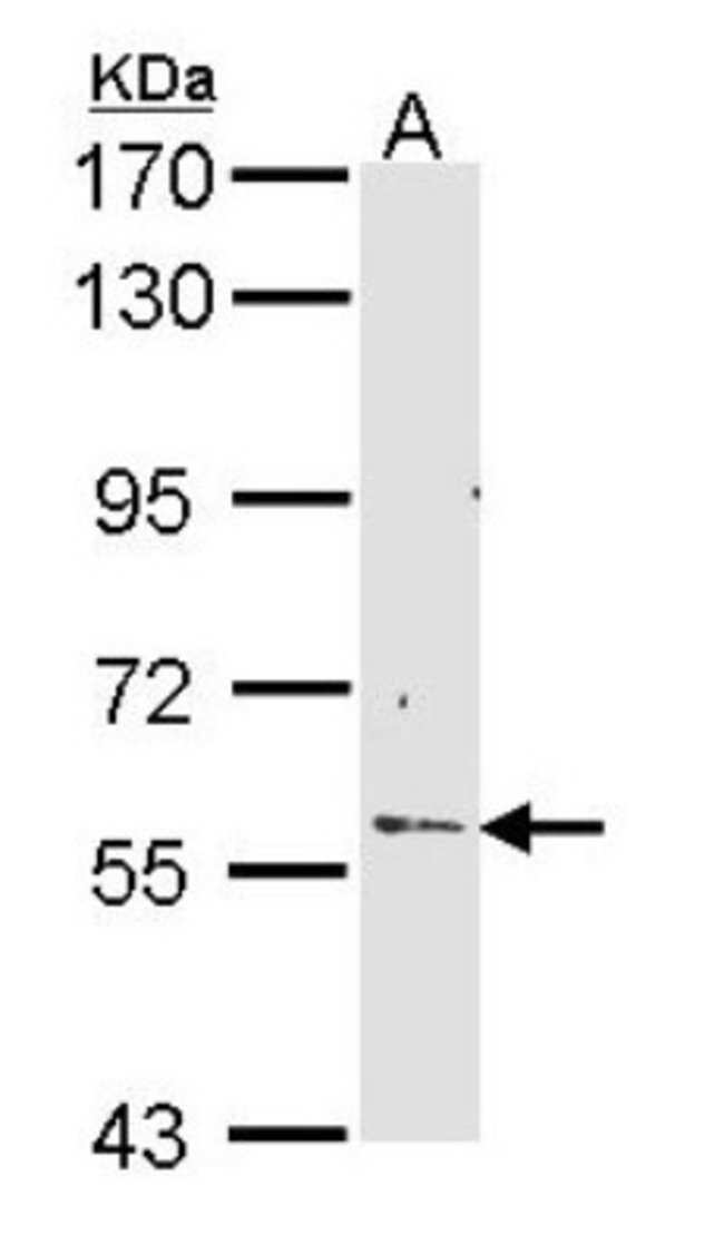 anti-RCBTB2, Polyclonal, Novus Biologicals 0.1mL; Unlabeled:Life Sciences