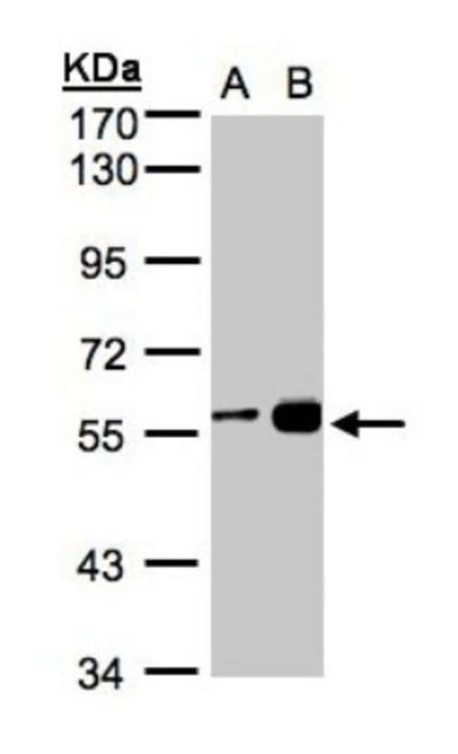 anti-RCC2, Polyclonal, Novus Biologicals 0.1mg; Unlabeled:Life Sciences