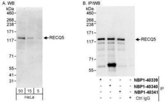 anti-RECQL5, Polyclonal, Novus Biologicals 0.1mg; Unlabeled:Life Sciences