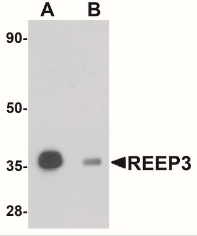 anti-REEP3, Polyclonal, Novus Biologicals 0.1mg; Unlabeled:Life Sciences
