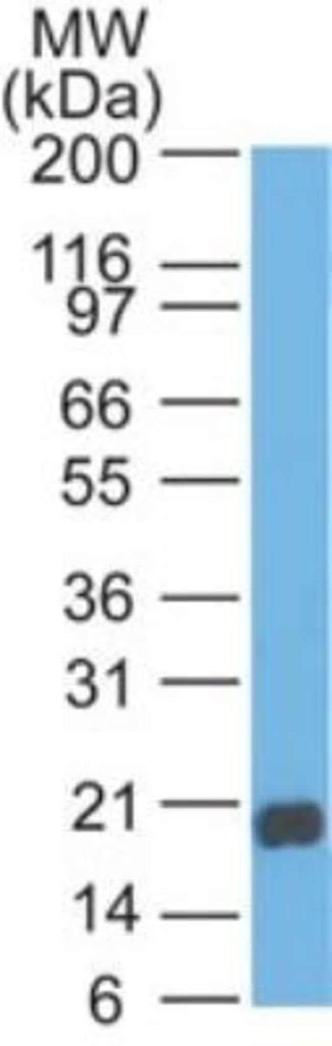 anti-Reg3A, Polyclonal, Novus Biologicals:Antibodies:Primary Antibodies