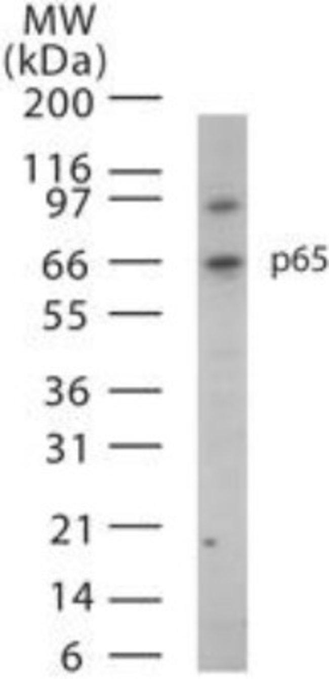anti-RelA/NFkB p65, Polyclonal, Novus Biologicals:Antibodies:Primary Antibodies