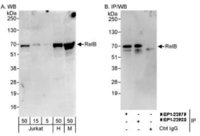 anti-RelB, Polyclonal, Novus Biologicals 0.1mg; Unlabeled:Life Sciences