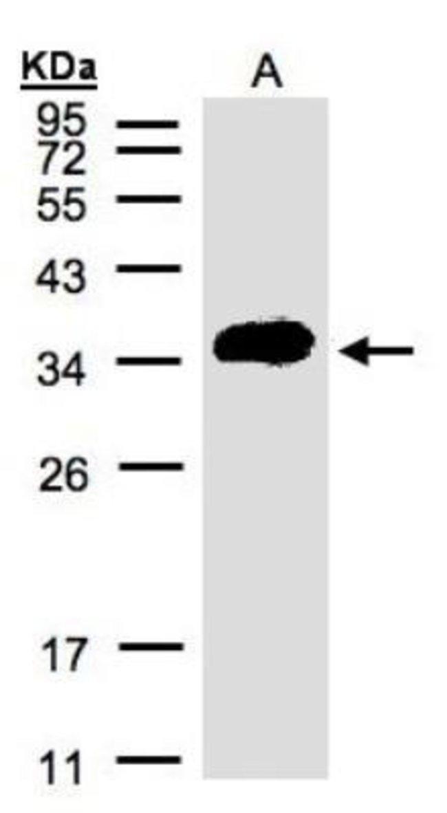 anti-Renin R, Polyclonal, Novus Biologicals 0.1mg; Unlabeled:Life Sciences