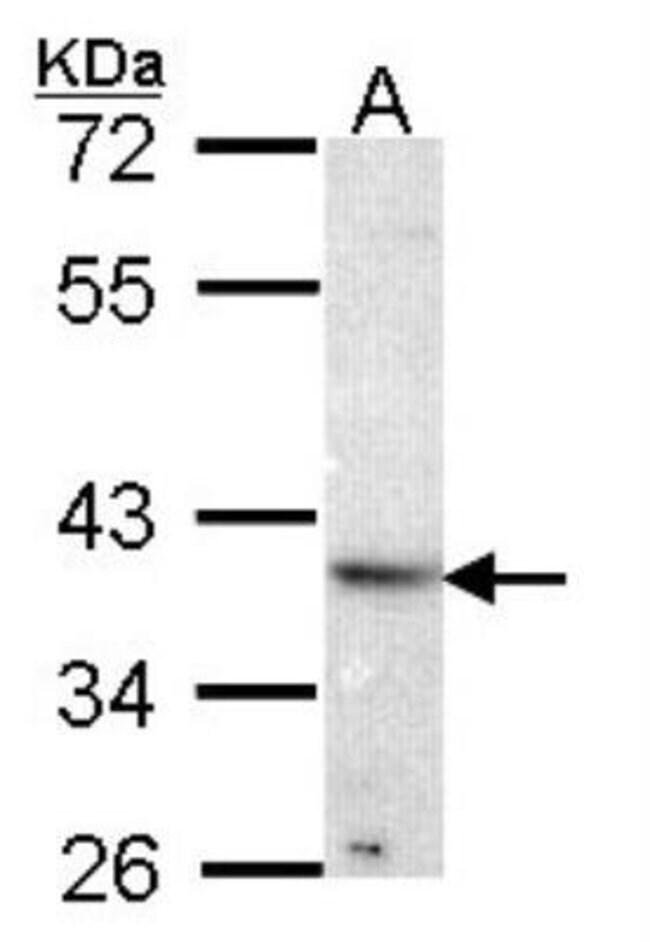 anti-Renin R, Polyclonal, Novus Biologicals 0.1mL; Unlabeled:Antibodies