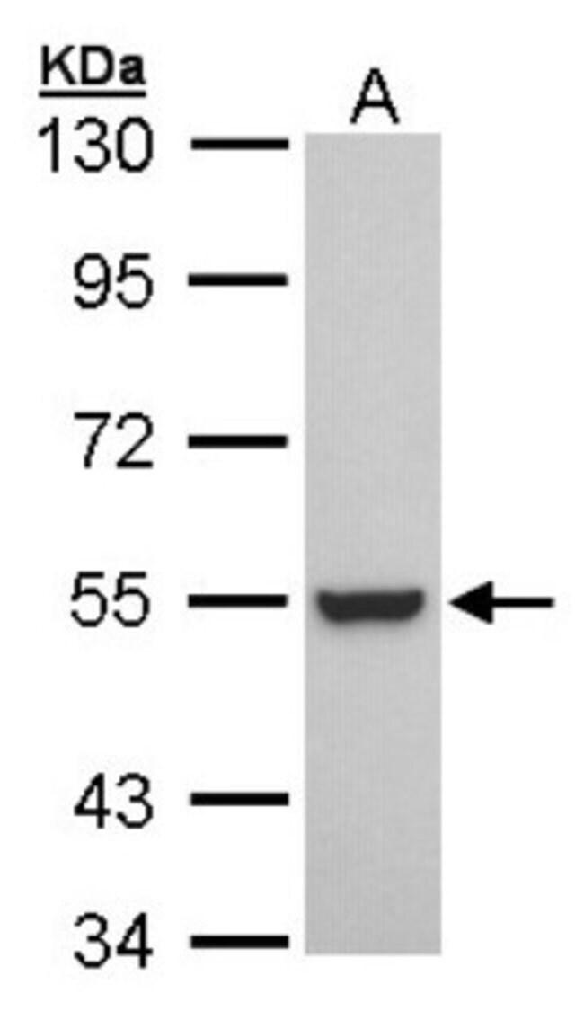 anti-RXR beta/NR2B2, Polyclonal, Novus Biologicals 0.1mg; Unlabeled:Life