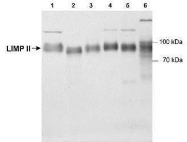 Novus Biologicals Reverse Cholesterol Transport Antibody Pack 2 vials:Life