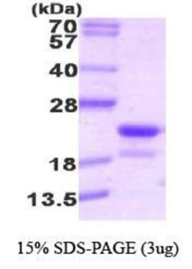 Novus Biologicals RFK Protein 0.1mg; Unlabeled:Life Sciences