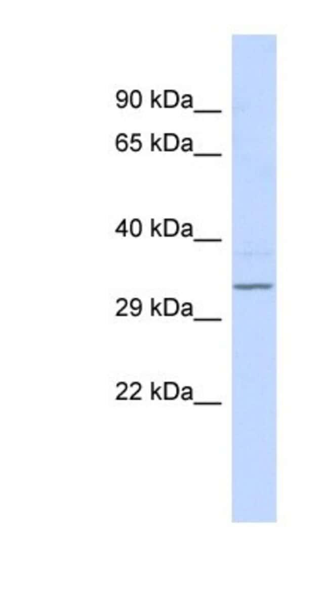 RFPL4B Rabbit anti-Human, Polyclonal, Novus Biologicals 20µL; Unlabeled