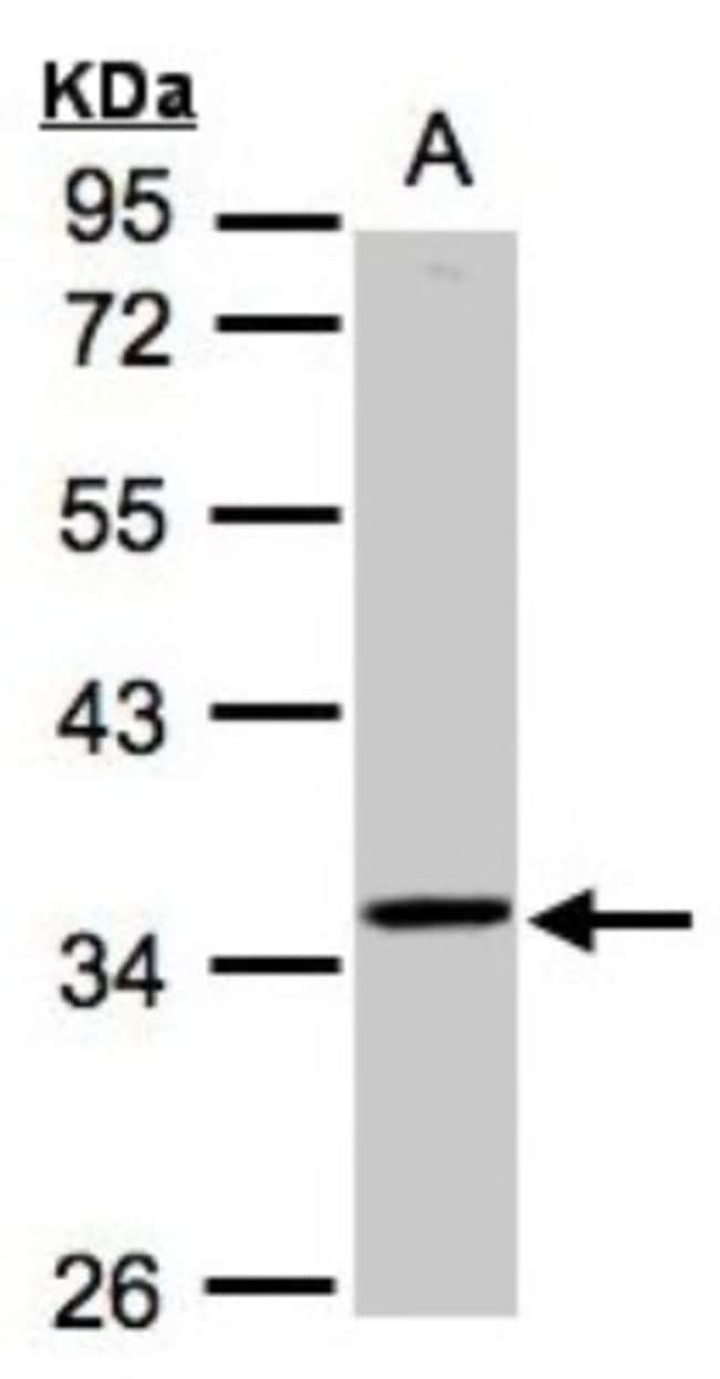 anti-RG9MTD3, Polyclonal, Novus Biologicals 0.1mg; Unlabeled:Life Sciences