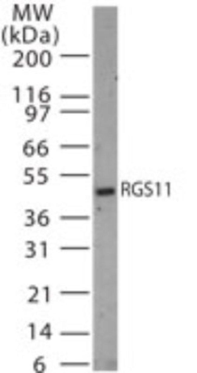 anti-RGS11, Polyclonal, Novus Biologicals:Antibodies:Primary Antibodies