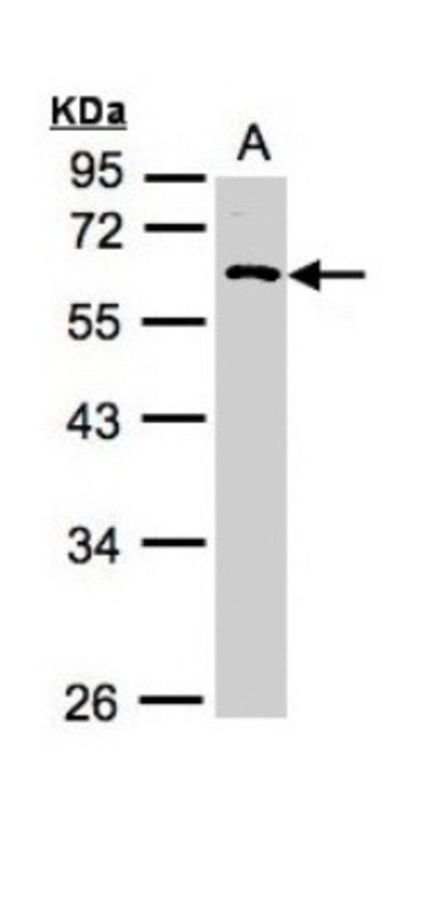 anti-RGS11, Polyclonal, Novus Biologicals 0.1mg; Unlabeled:Life Sciences