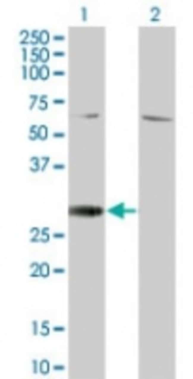 anti-RGS18, Polyclonal, Novus Biologicals:Antibodies:Primary Antibodies