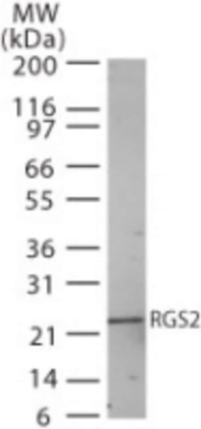 anti-RGS2, Polyclonal, Novus Biologicals:Antibodies:Primary Antibodies