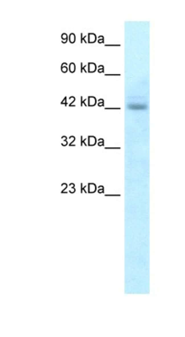 RGS20 Rabbit anti-Human, Polyclonal, Novus Biologicals 20µL; Unlabeled
