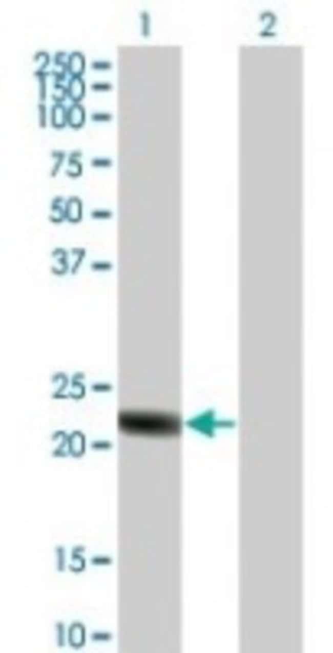 anti-RGS5, Polyclonal, Novus Biologicals:Antibodies:Primary Antibodies