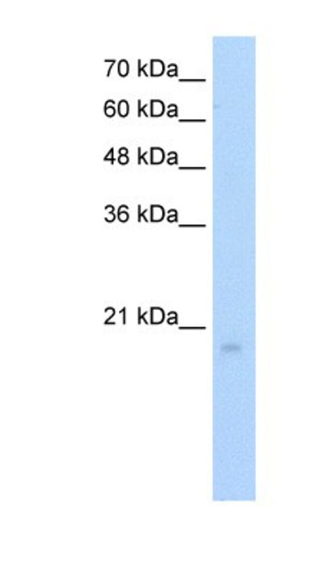 RGS8 Rabbit anti-Human, Polyclonal, Novus Biologicals 20µL; Unlabeled