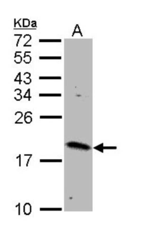 anti-Rheb, Polyclonal, Novus Biologicals 0.1mg; Unlabeled:Life Sciences
