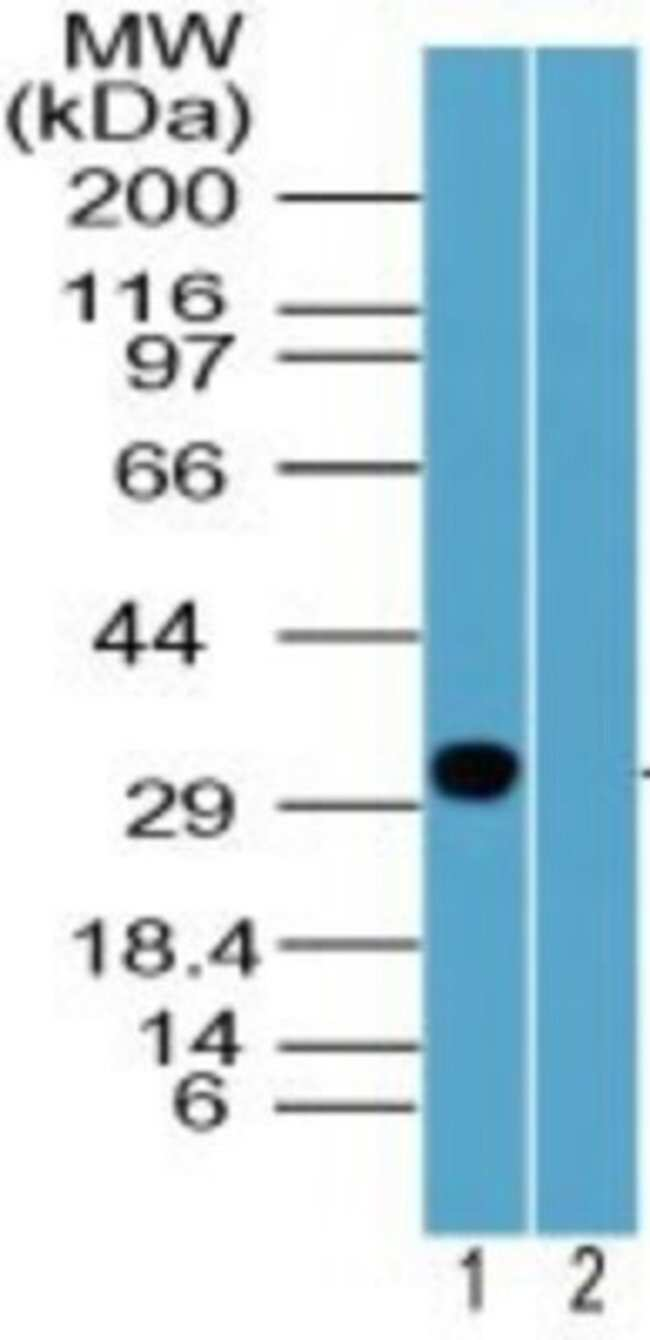 anti-Rhox2, Polyclonal, Novus Biologicals:Antibodies:Primary Antibodies