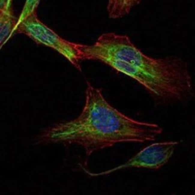 anti-Rictor, Clone: 7B3, Novus Biologicals:Life Sciences:Antibodies