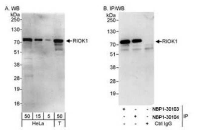 anti-RIOK1, Polyclonal, Novus Biologicals 0.1mL; Unlabeled:Life Sciences