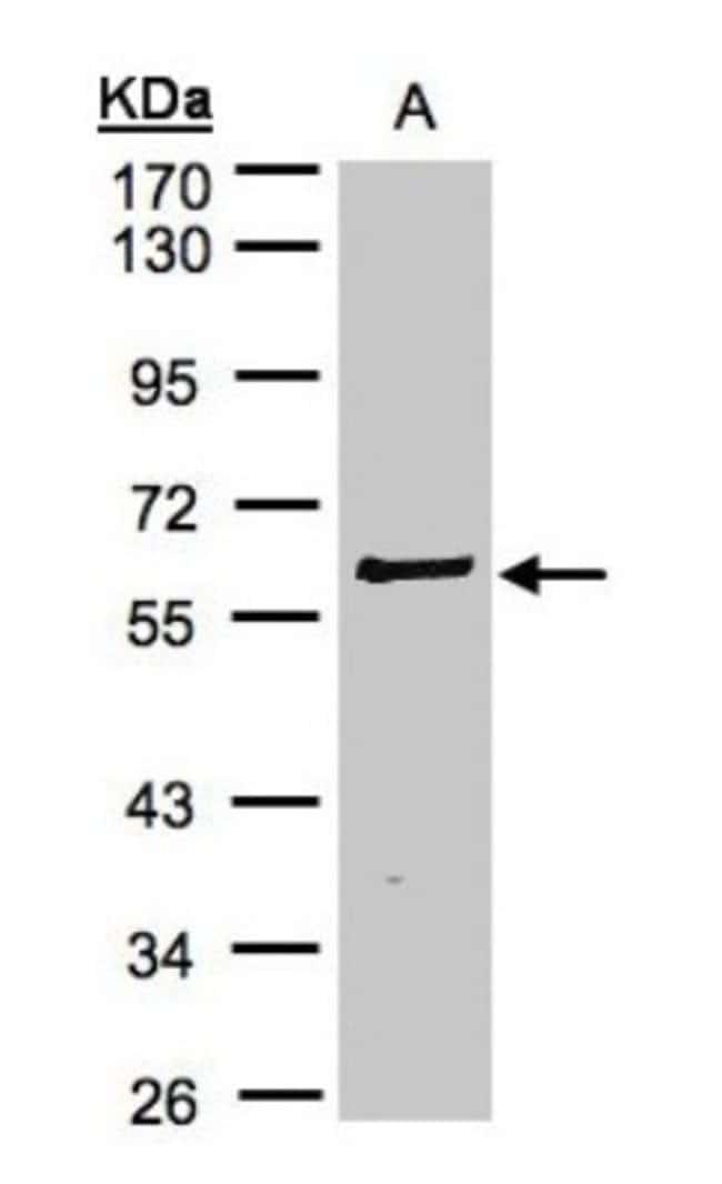 anti-RIPK2, Polyclonal, Novus Biologicals 0.1mL; Unlabeled:Life Sciences