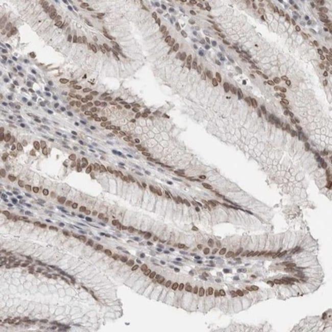 anti-RNA binding motif protein, X-linked 2, Polyclonal, Novus Biologicals