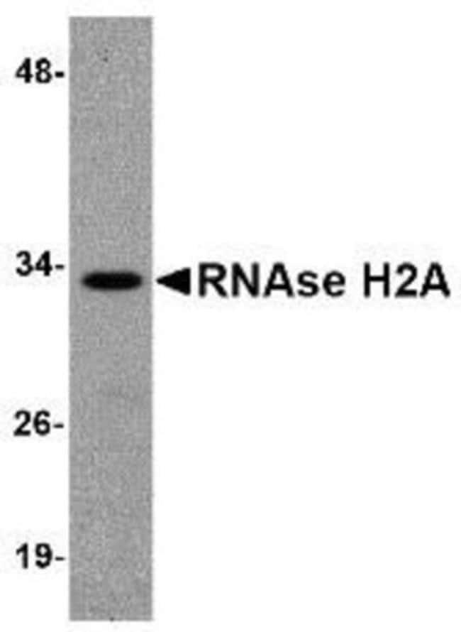 anti-RNASEH2A, Polyclonal, Novus Biologicals 0.1mg; Unlabeled:Life Sciences