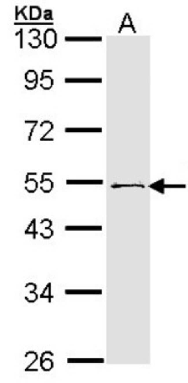 anti-RNF13, Polyclonal, Novus Biologicals 0.1mg; Unlabeled:Life Sciences