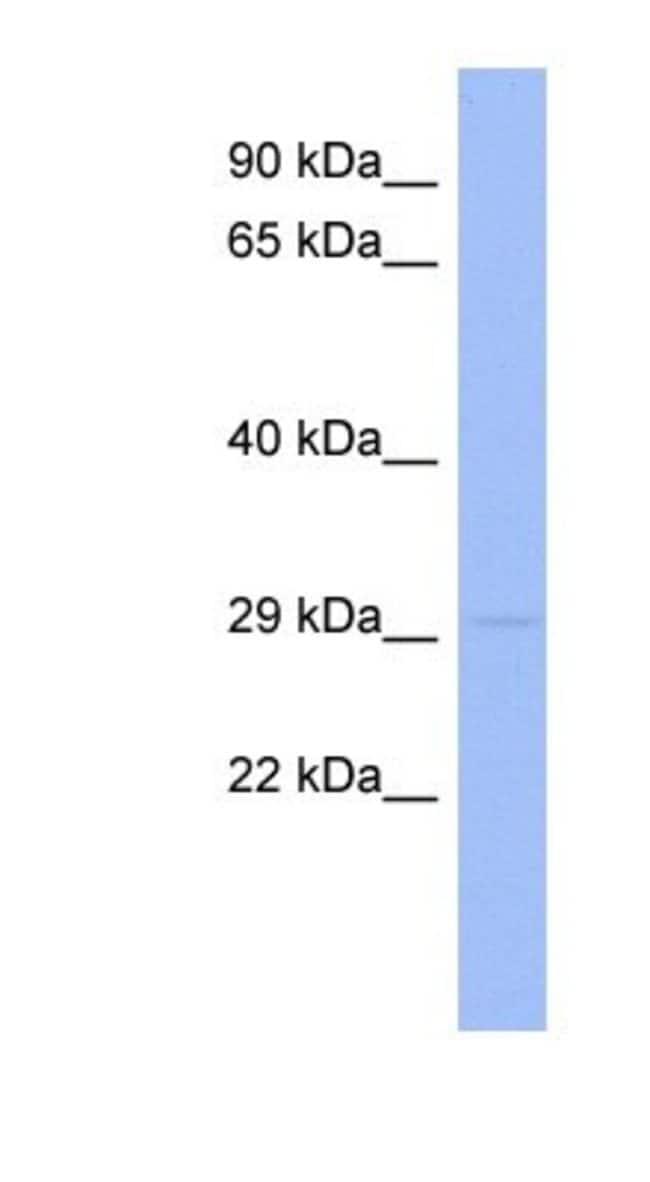 RNF166 Rabbit anti-Human, Polyclonal, Novus Biologicals 20µL; Unlabeled